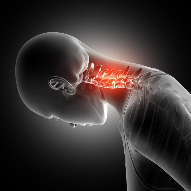 Whiplash Injury Treatment | Boulder Massage Therapists | Optimal Wellness Co