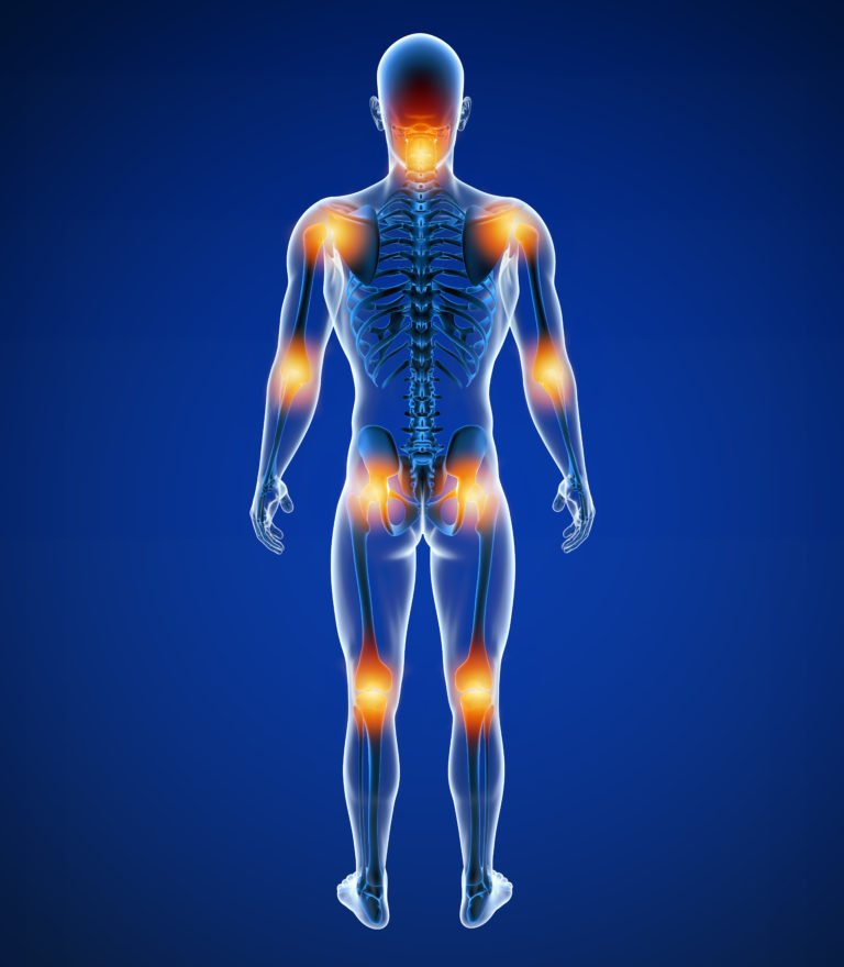 Fibromyalgia Treatment | Optimal Wellness Co